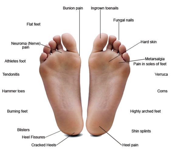 Foot Diagram
